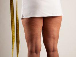 Cellulite bei einer Frau